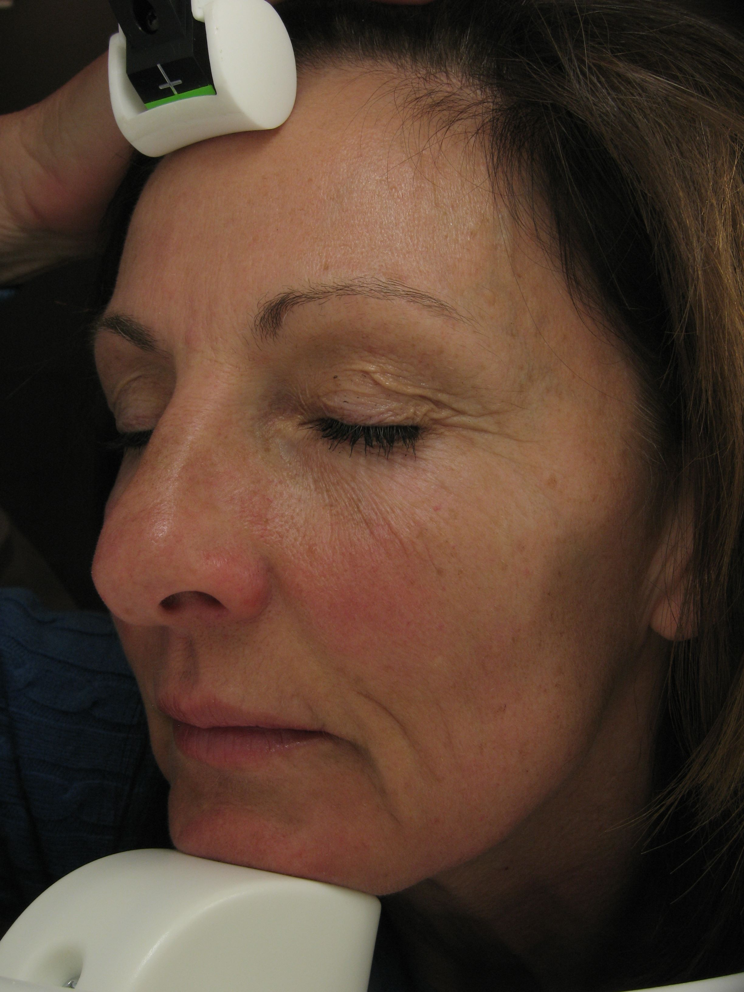 Left side before image of wrinkles; Aesthetic Clinique