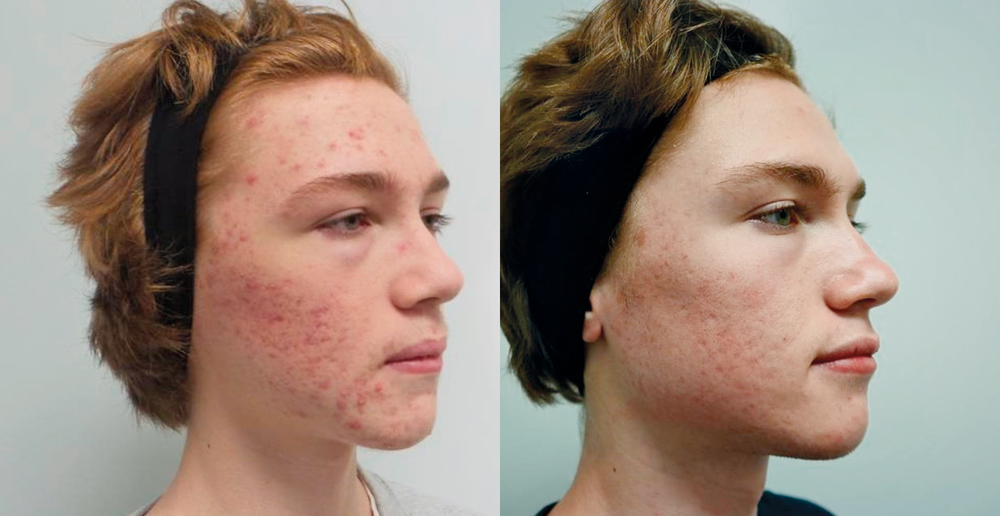 Acne patient before and after treatment with Infini, Excel V, and Spectra laser Aesthetic Clinique